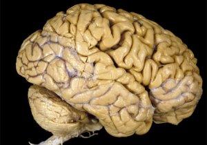 human-brain-vis304784-ga